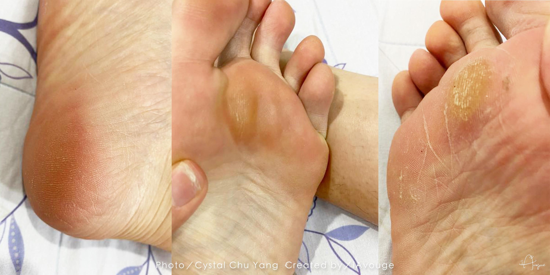 腳底死皮長繭乾裂,需要深層腳部去角質修護實際照片-台北IA專業美睫設計
