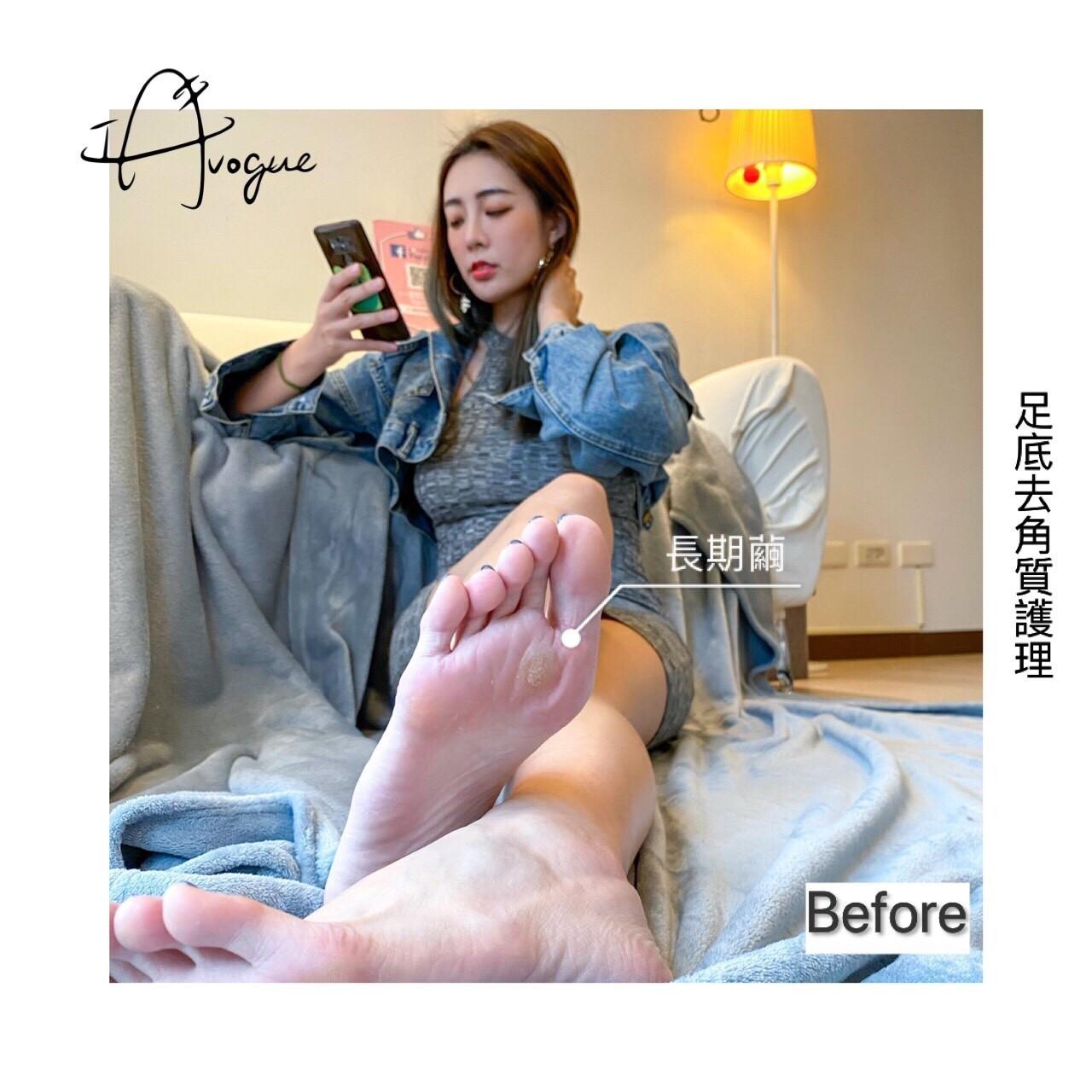 足底去角質護理前,腳底粗糙厚繭-台北IA專業美睫設計